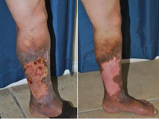 A ulcera varicosa é uma das complicações de varizes que não foram tratadas de forma adequada