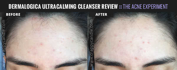 Dermalogica Ultracalming Cleanser Before & After 2 Week Trial :: Crappy Candle