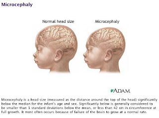 Microcephaly on fetal alcohol syndrome