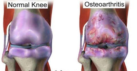 من الطبيعة خلطات لعلاج خشونة الركبة والمفاصل