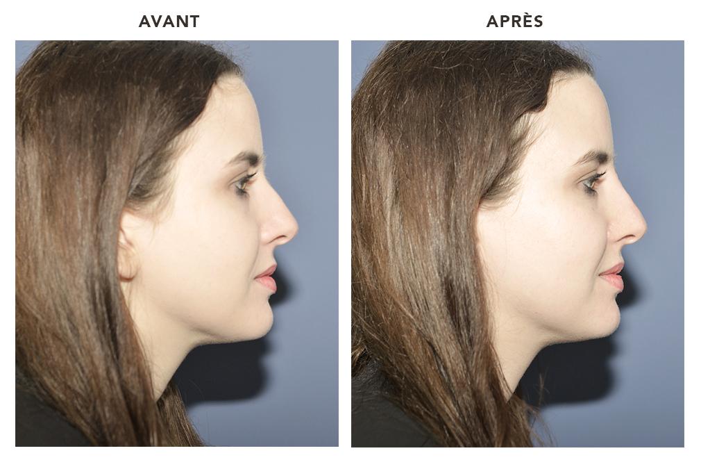 Le blog de justine - Bosse sur le nez apres coup ...