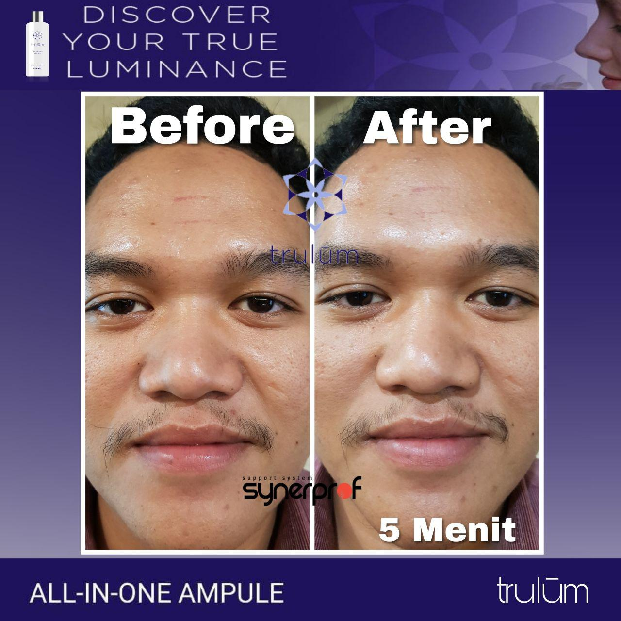 Jual Trulum All In One Ampoule Di Pulau Maya WA: 08112338376