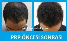 prp saç tedavisi yaptıranlar 29