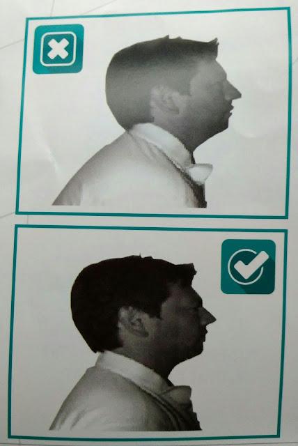 Senaman selepas pembedahan tiroid.