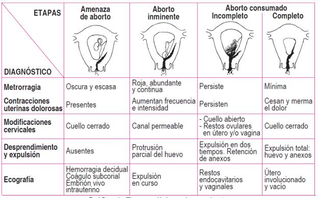 Aprende Según Su Clínica Los Tipos De Abortos Guía De Práctica Clínica Medicina Mnemotecnias