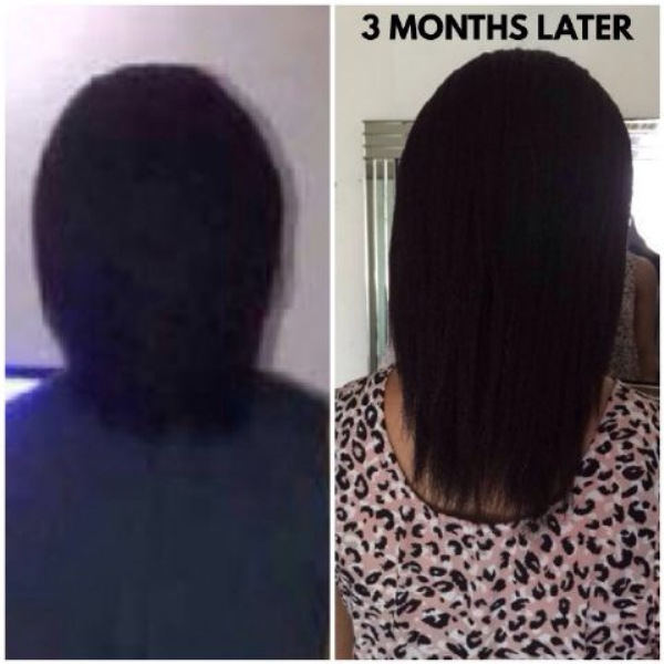 how to make your hair grow super fast naturally