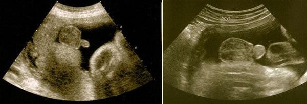 34 Haftalık Erkek Bebek Ultrason Görüntüsü
