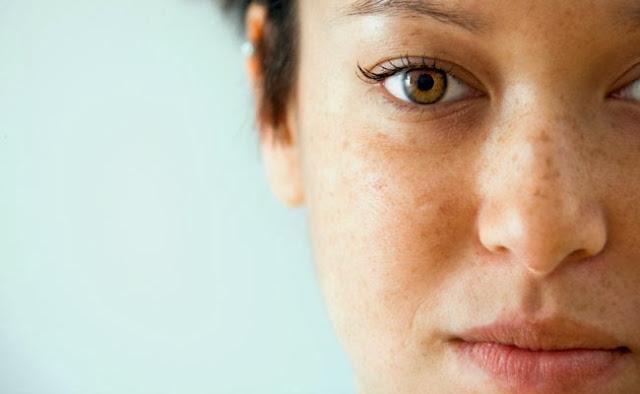 Dicas para prevenir e tratar manchas escuras do rosto