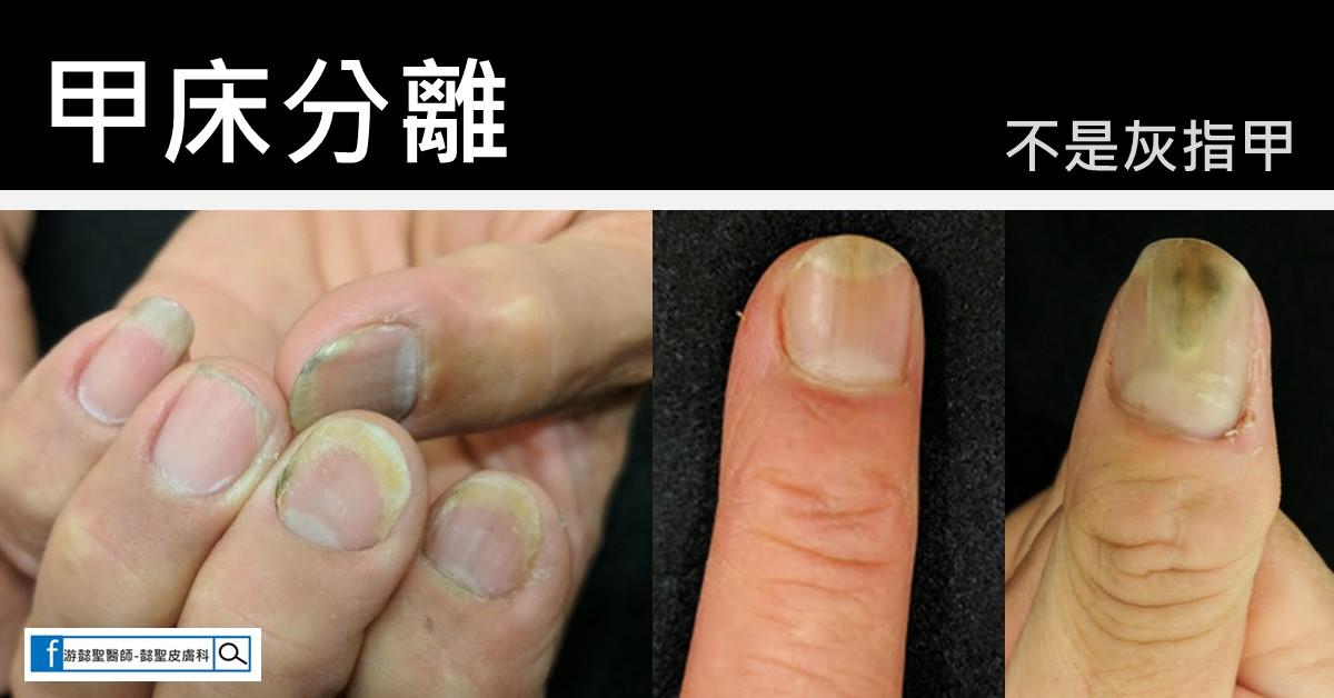高雄皮膚科推薦-游懿聖醫師: 為什麼你的灰指甲不會好?灰指甲的六大誤區一次說給你聽