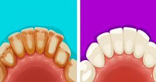 6 αποτελεσματικοί τρόποι να αφαιρέσετε την οδοντική πλάκα με φυσικό τρόπο