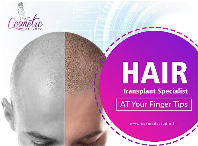 hair loss treatment in bangalore