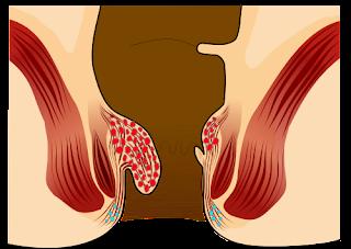 Gambar Obat Wasir Herbal Selain Klinik Bafar