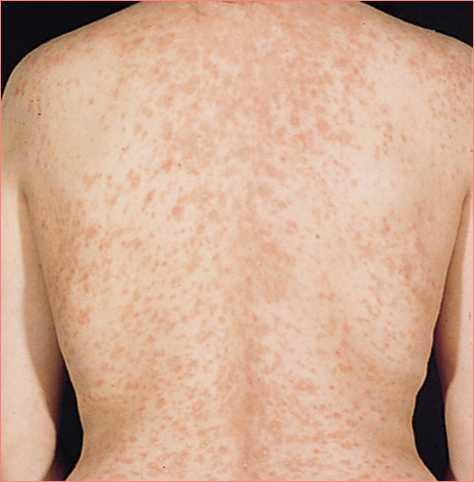 Christmas Tree Rash Causes, Treatment, Home Remedies, Pictures ...