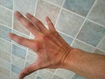 tendones extensores mano