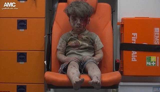 Duduk Di Kursi . Bocah Suriah Korban Bom dan Menjadi Heboh Netizen Dunia
