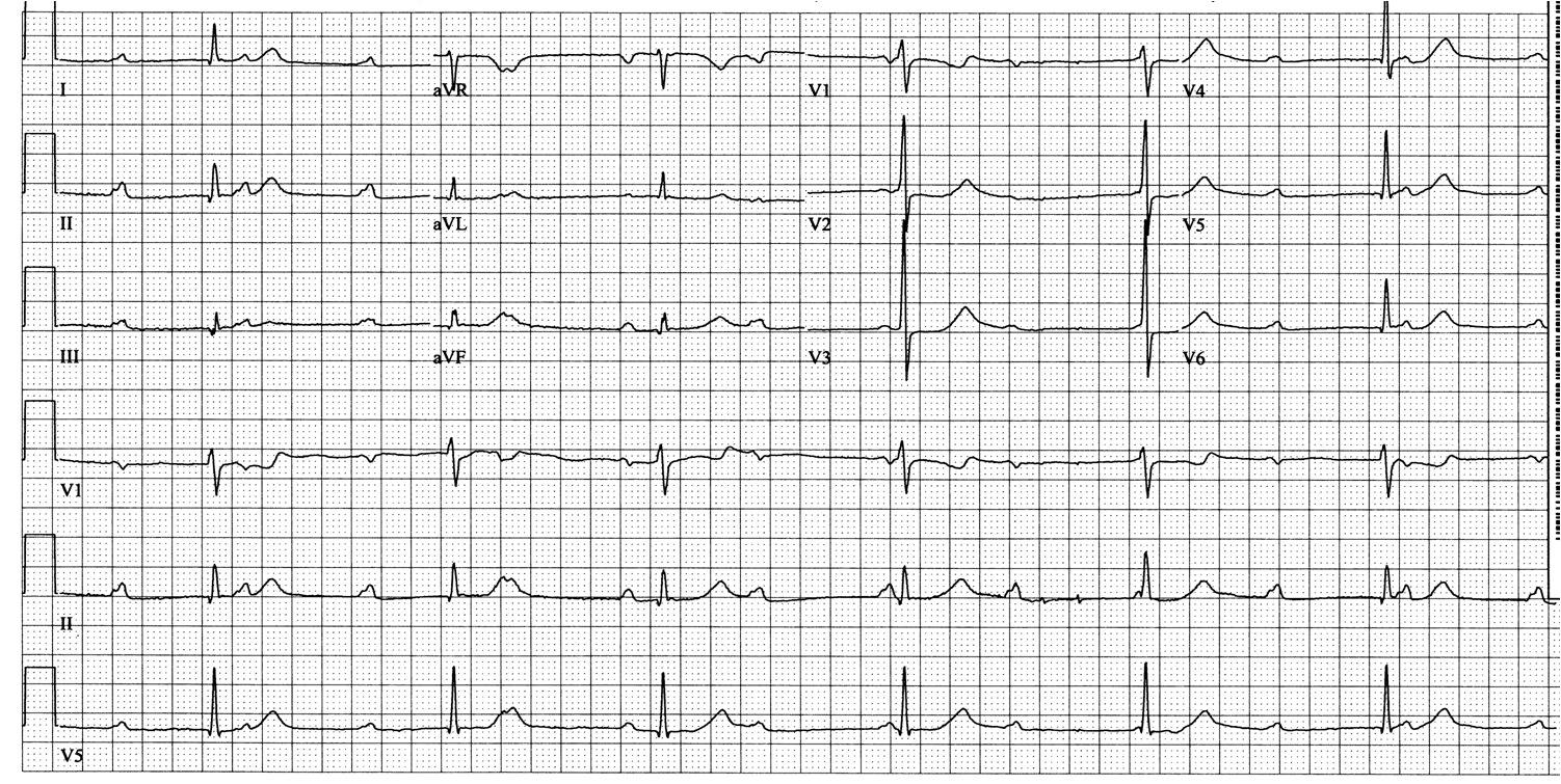 Dr. Smith's ECG Blog: What Kind of AV Block is This? Guest