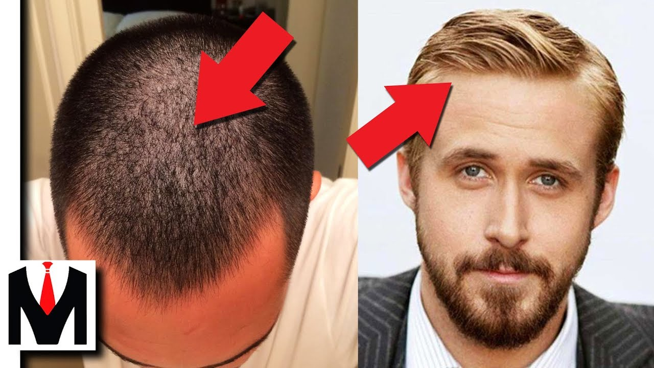 how to get thick hair? 5 ways to get thick hair