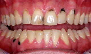 bị sâu kẽ răng cửa phải làm sao ?