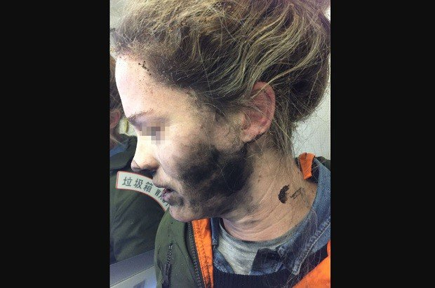 SHOCKING: Woman Suffered Burns During Flight Because of Using This!