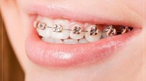 Apakah aman Jika Pasang Kawat Gigi Ditukang Gigi?, dampak dari pemasangan kawat gigi