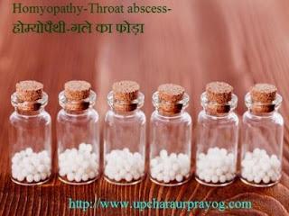 गले का फोड़ा-Throat Abscess