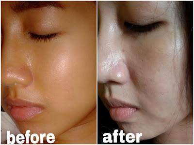 Cream Pemutih Wajah Untuk Menghilangkan Flek Hitam Yang Aman Berizin BPOM