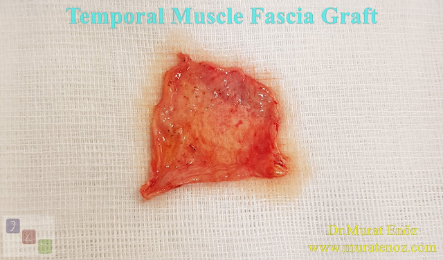 Temporal Muscle Fascia Graft