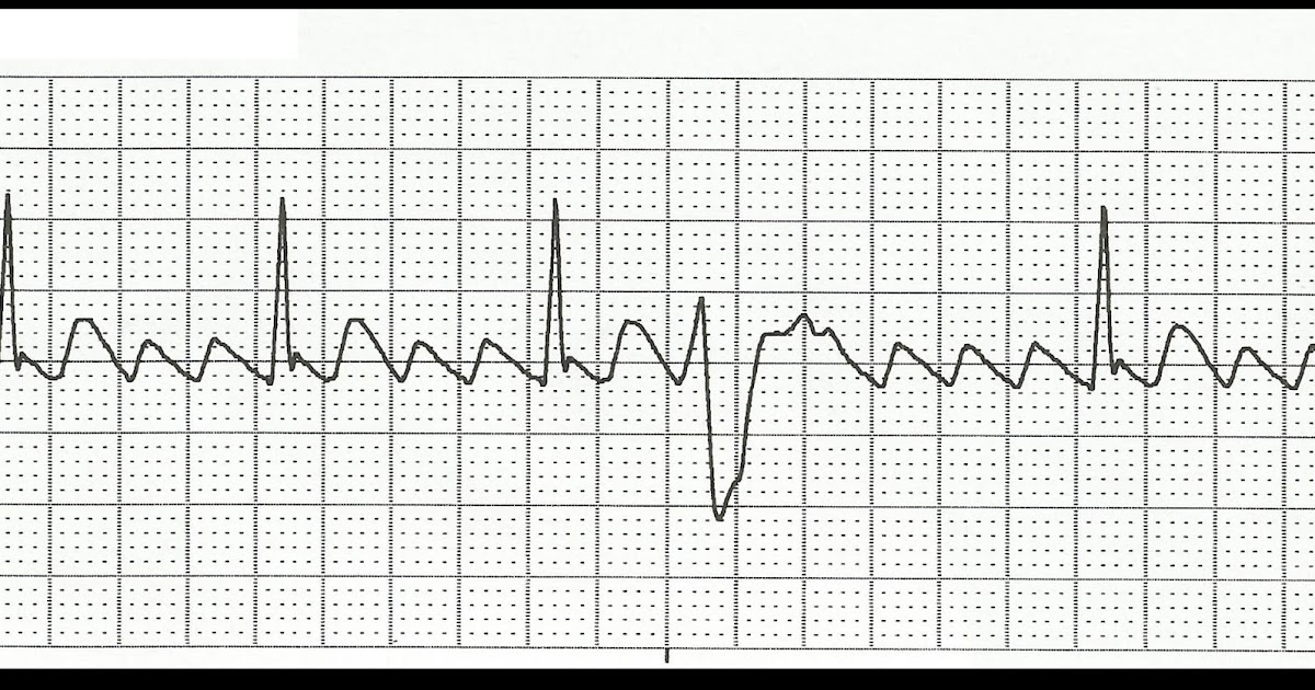 Float Nurse: Practice EKG Rhythm Strips 173