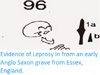 http://sciencythoughts.blogspot.co.uk/2015/05/evidence-of-leprosy-in-from-early-anglo.html