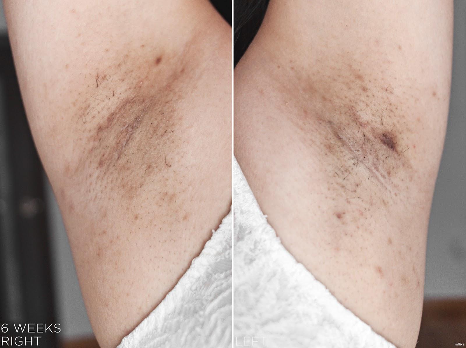 tria Hair Removal Laser Armpits Hair 6 Weeks