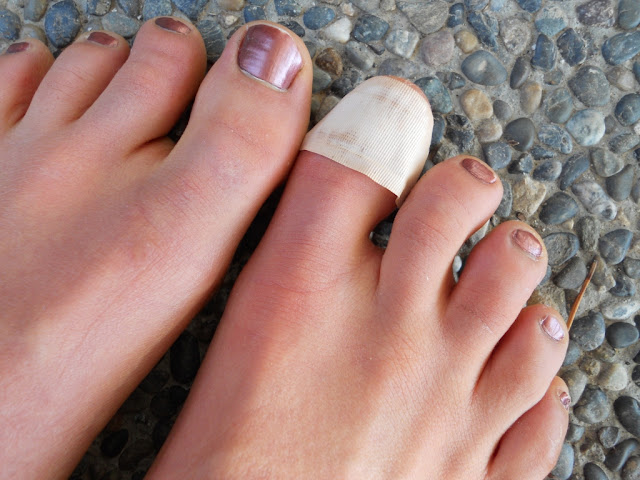 nail falling off after pedicure