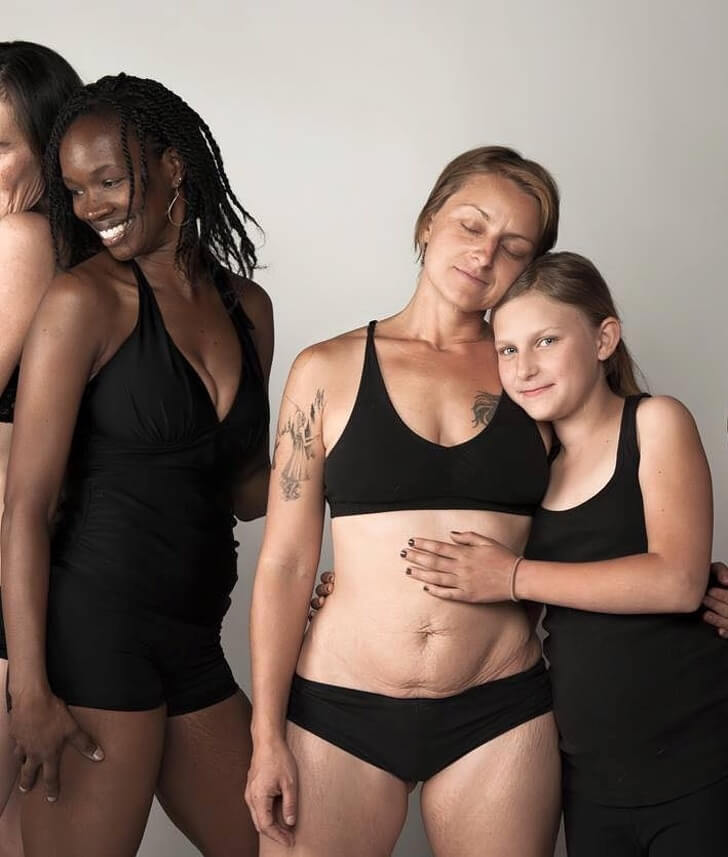 A Photographer Shows How Female Bodies Truly Look Like After Pregnancy