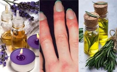 remèdes d'origine naturelle pour traiter les engelures