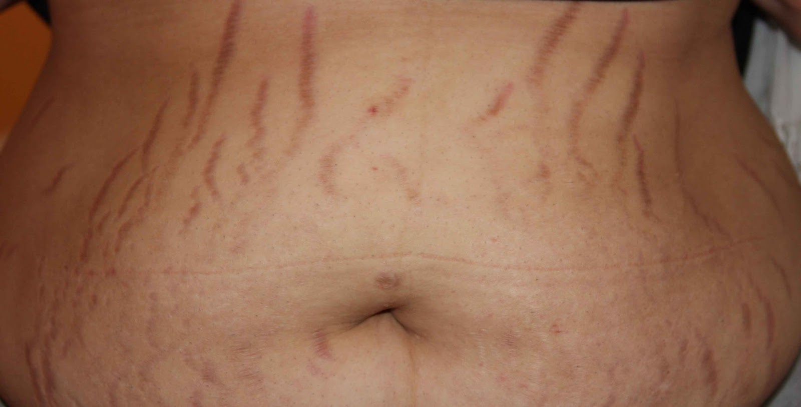stretch marks on breast area - HD 3807×1936