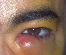 Penyakit Mata Dakriosistitis