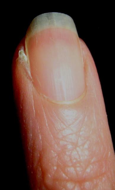 hang nail