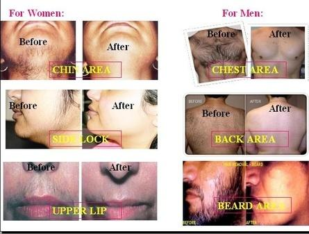 Natural Permanent Hair Removal 08152054136 How To Remove Unwanted