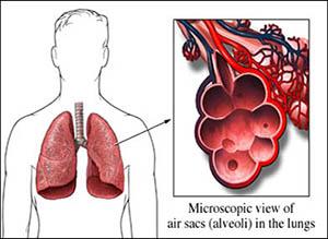 Allergic Bronchopulmonary Aspergillosis, ABPA, Symptoms, Causes, Natural Treatment