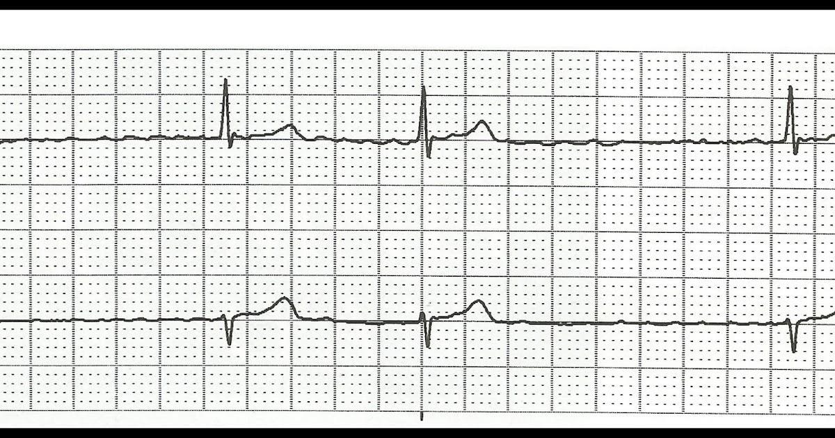 Float Nurse: Practice ECG Rhythm Strips 110
