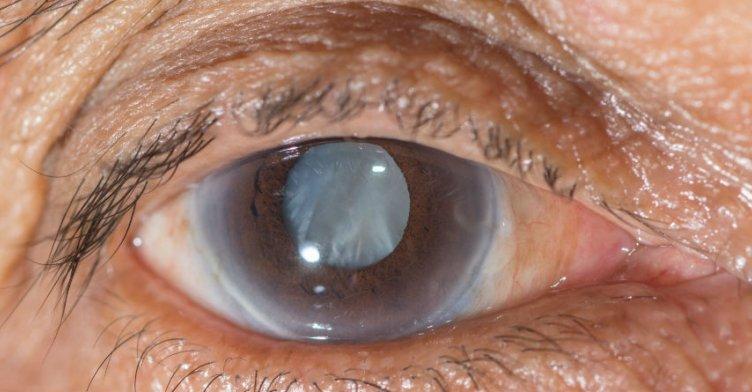Image result for मोतियाबिंद