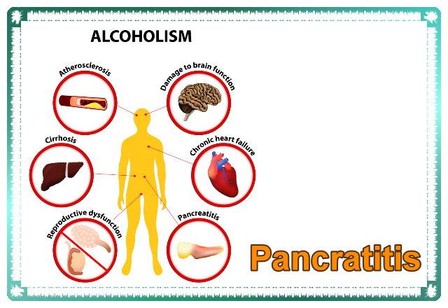 Acute pancratitis
