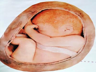 Gambar Perkembangan Janin Di Kehamilan Minggu ke-17