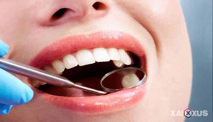 21 Cara Mengeluarkan Ulat Gigi Sendiri Dengan Bahan Alami dan Tradisional