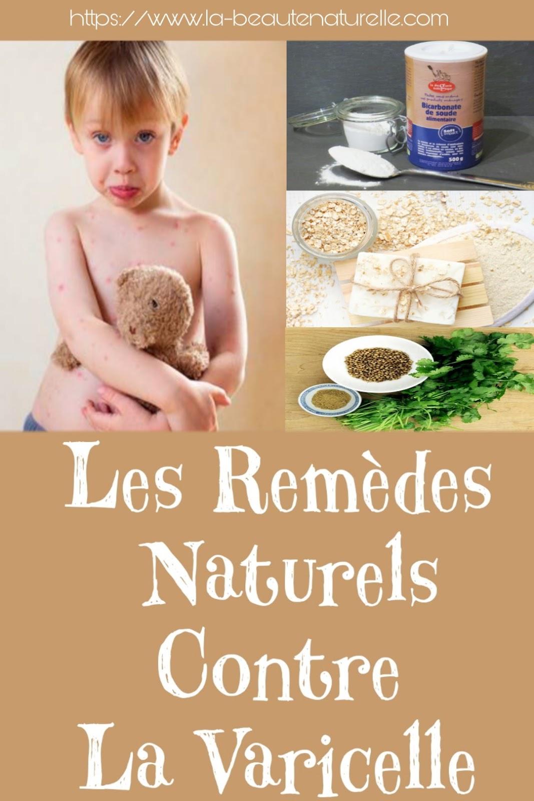 Les Remèdes Naturels Contre La Varicelle