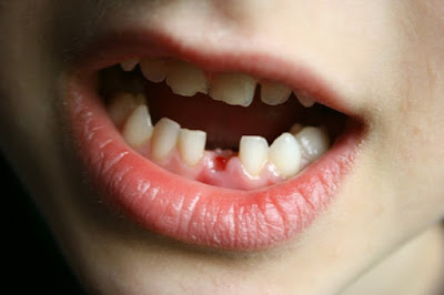 Răng sữa mất sớm có thể khiến răng vĩnh viễn mọc lệch sau này