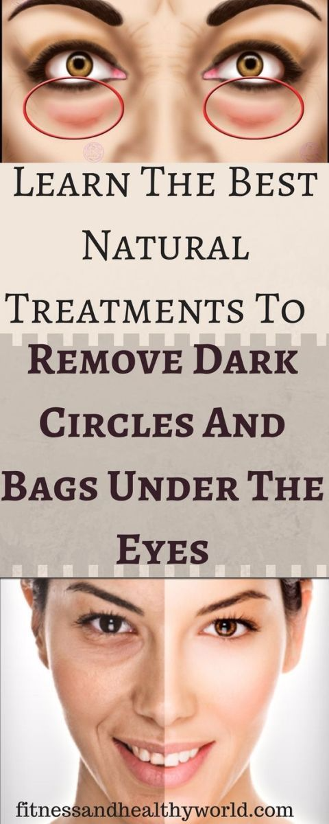 LEARN THE Best Natural Treatments To Remove Dark Circles ...