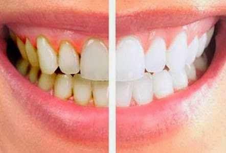 Cara Memutihkan Gigi Perokok Cara Memutihkan Gigi