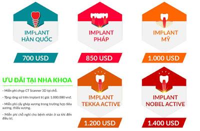 bảng giá trồng răng implant