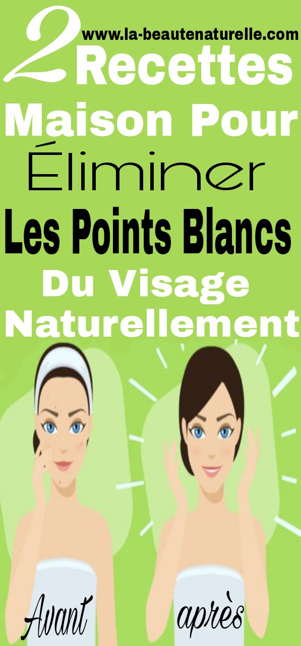 2 recettes maison pour liminer les points blancs du visage naturellement. Black Bedroom Furniture Sets. Home Design Ideas