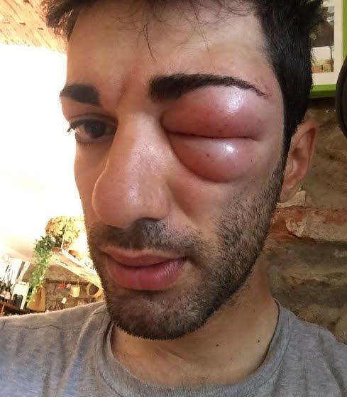 Foto Danilo Celano shock, sfigurato dalla puntura di una vespa